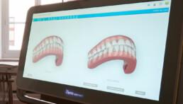 Das virtuelle Behandlungsergebnis zeigt den Behandlungserfolg schon vor Beginn der Behandlung an.