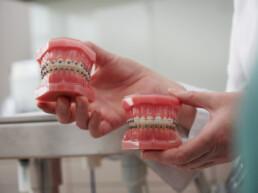 Feste Zahnspange in der kieferorthopädischen Praxis Dr. Girthofer in München