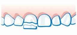 Milchzahnunfall - Zahn ist abgebrochen