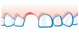 Milchzahnunfall - Zahn ist ausgeschlagen