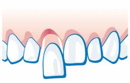 Zahnunfall - Zahn ist locker oder verschoben