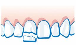 Zahnunfall -Zahnkrone oder Teilstück ist abgebrochen
