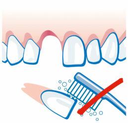 Zahnunfall - Zahn ist ausgeschlagen